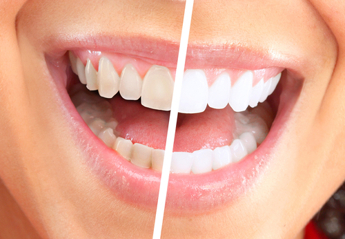 The Evolution of Cosmetic Dentistry