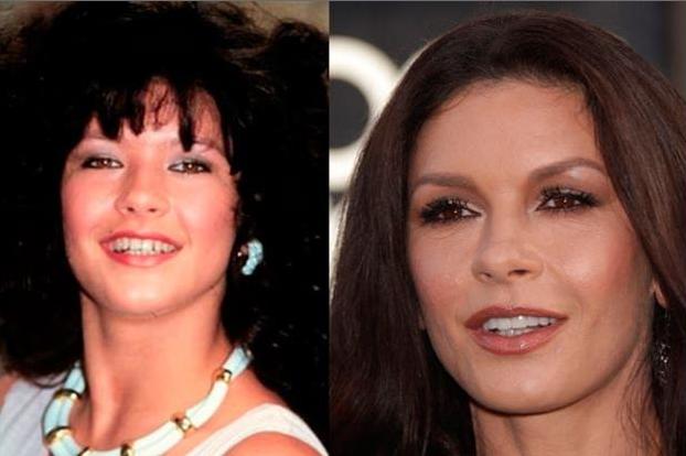 Catherine Zeta Jones teeth veneers before and after