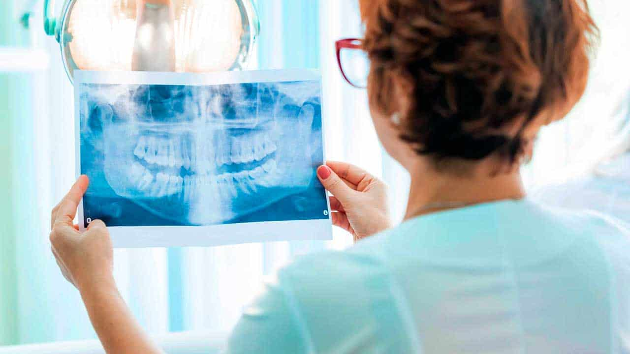A dental X-ray like the ones that we do at King of Prussia Dental Associates.
