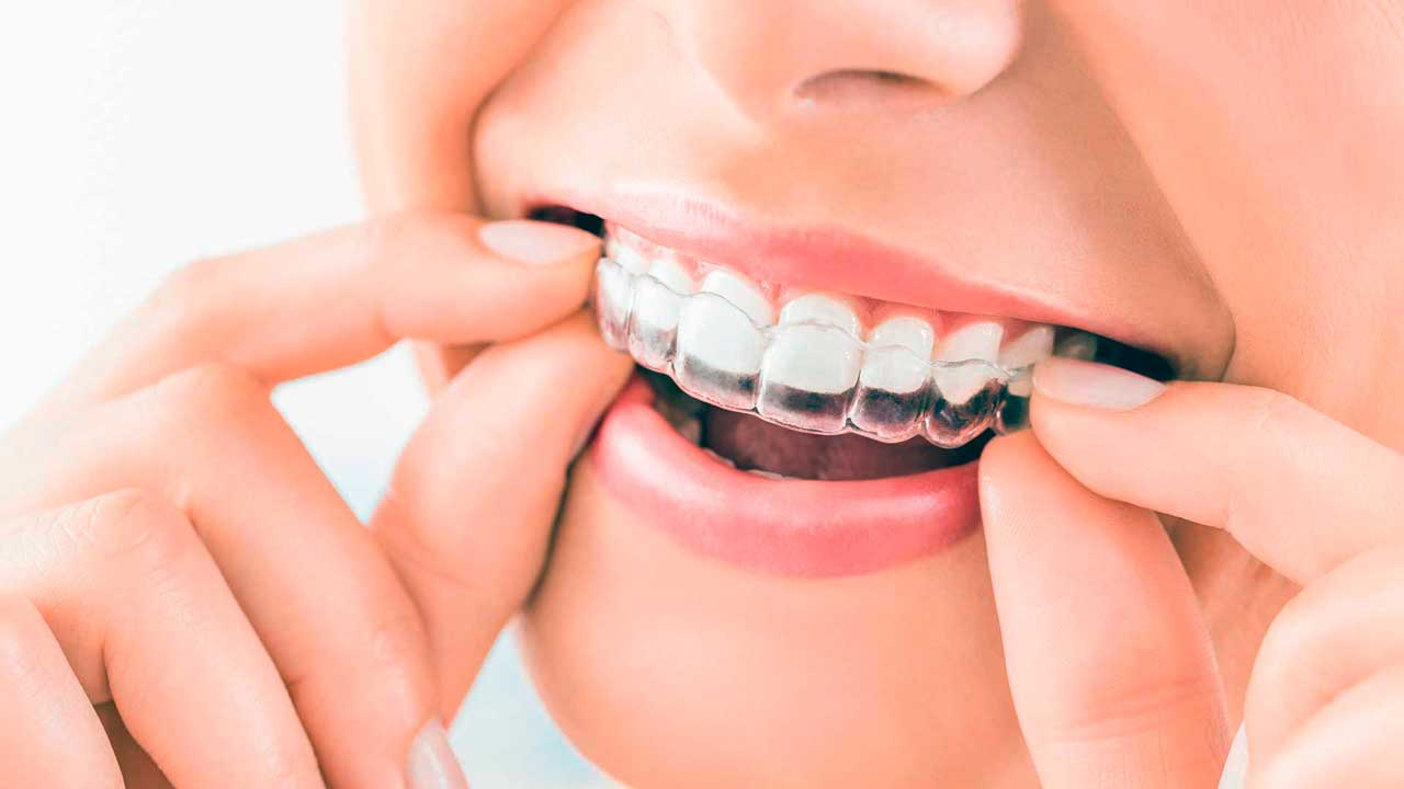 Invisalign aligners like the ones we use at King of Prussia Dental Associates.