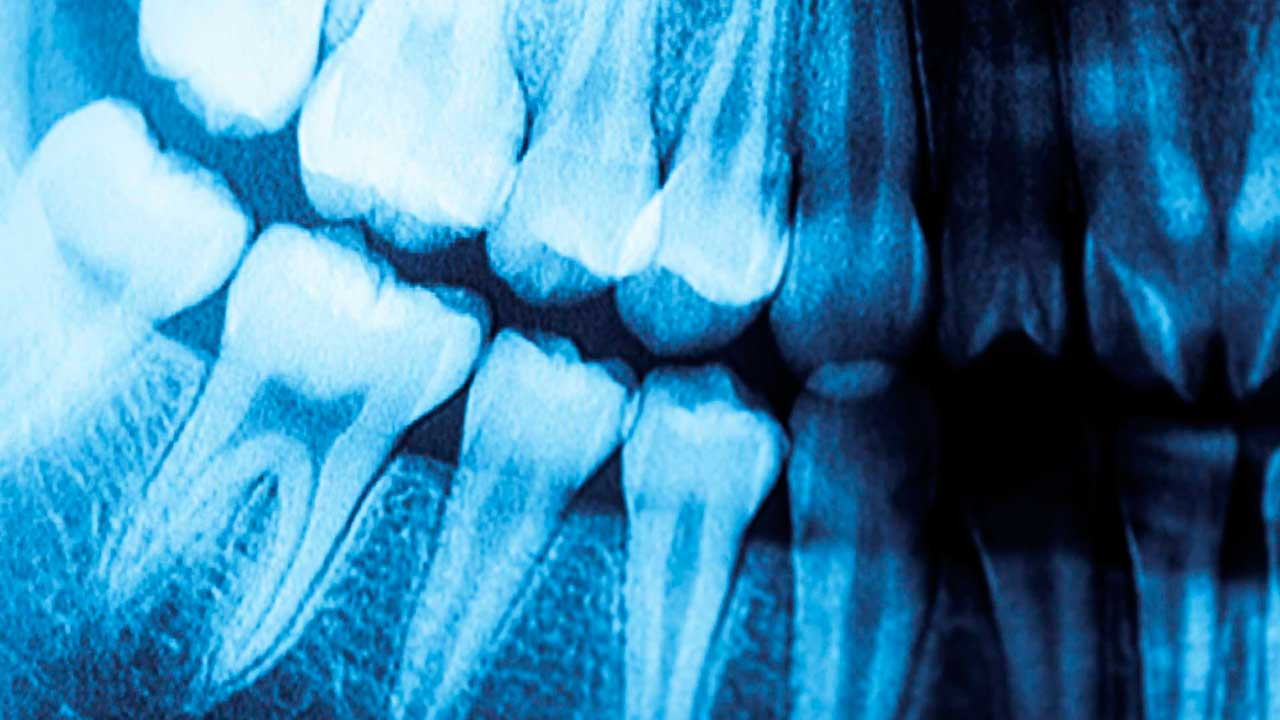 A panorex X-ray, made at King of Prussia Dental Associates.