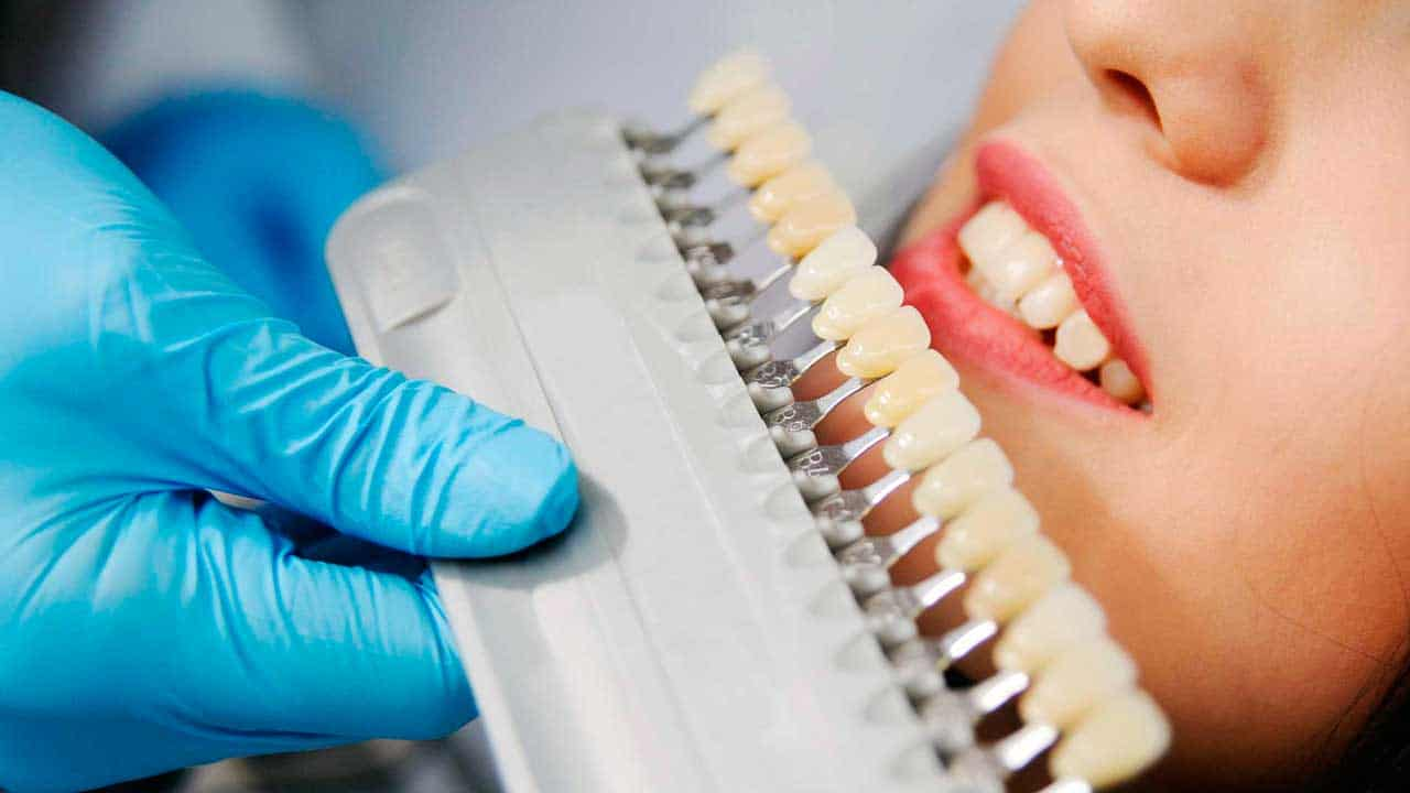 The process of choosing a porcelain crown by color at King of Prussia Dental Associates.