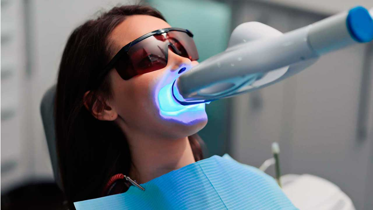 Professional teeth whitening process at King of Prussia Dental Associates.